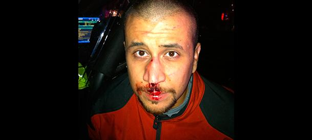 Zimmerman's bloody nose