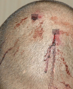 george zimmerman back of head 1