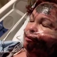 White woman sprays sulfuric acid into her own face — then blames it on a nonexistent black woman